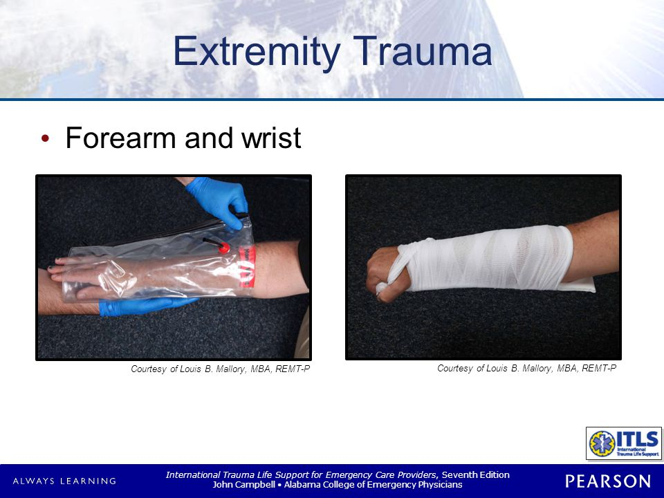 International Trauma Life Support for Emergency Care Providers, Seventh Edition John Campbell Alabama College of Emergency Physicians Extremity Trauma Forearm and wrist Courtesy of Louis B.