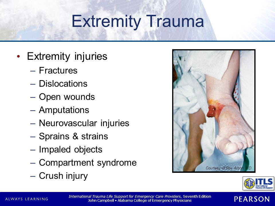 International Trauma Life Support for Emergency Care Providers, Seventh Edition John Campbell Alabama College of Emergency Physicians Extremity Trauma Extremity injuries –Fractures –Dislocations –Open wounds –Amputations –Neurovascular injuries –Sprains & strains –Impaled objects –Compartment syndrome –Crush injury Courtesy of Roy Alson, MD