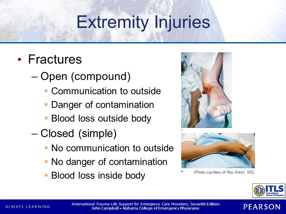 International Trauma Life Support for Emergency Care Providers, Seventh Edition John Campbell Alabama College of Emergency Physicians Extremity Injuri