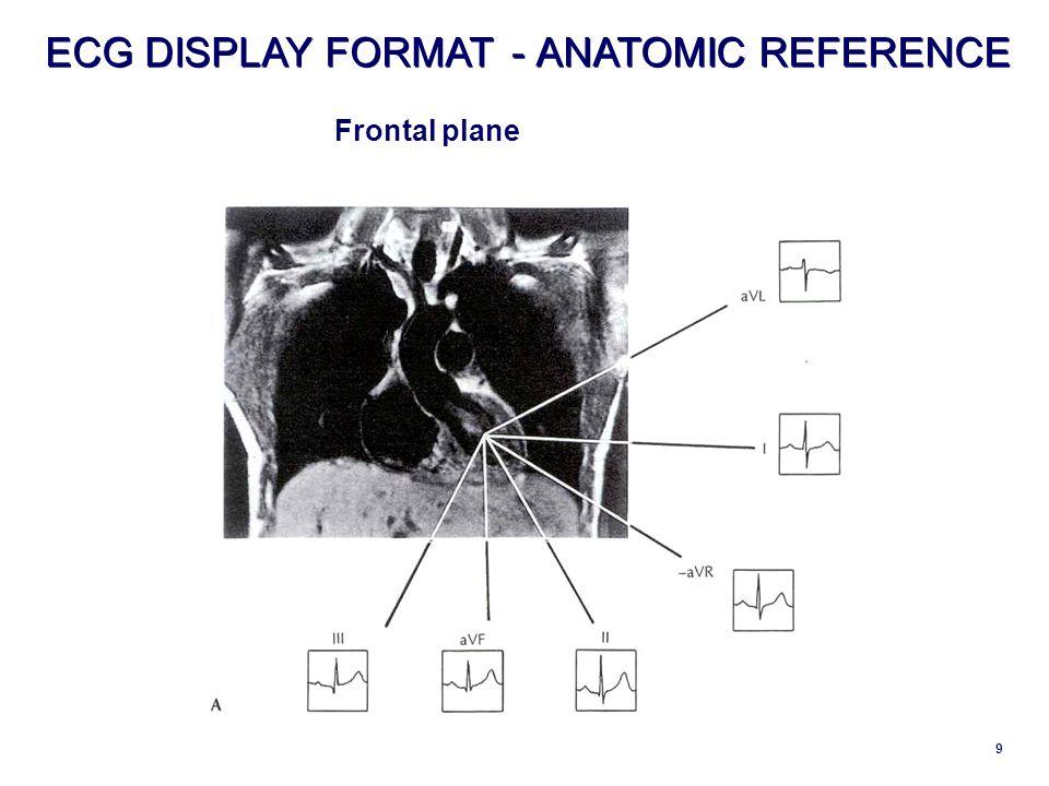 9 ECG DISPLAY FORMAT - - ANATOMIC REFERENCE Frontal plane