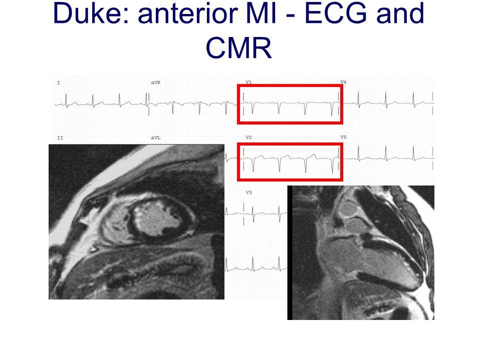 Duke: anterior MI - ECG and CMR