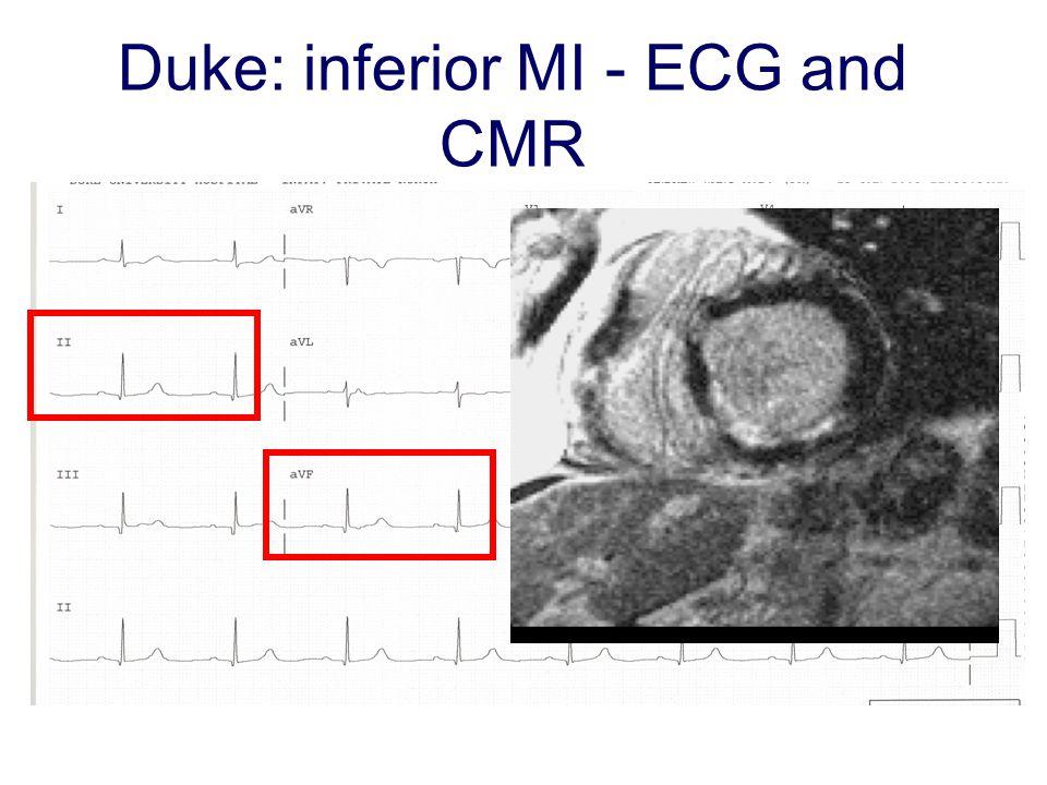 Duke: inferior MI - ECG and CMR
