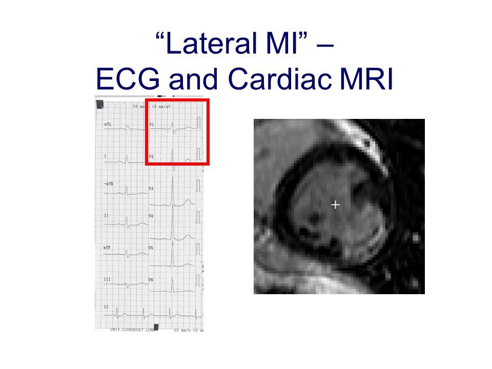 """Lateral MI"" – ECG and Cardiac MRI"
