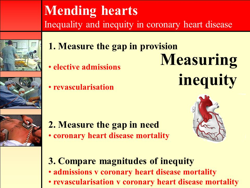 Mending hearts Inequality and inequity in coronary heart disease Measuring inequity 2.