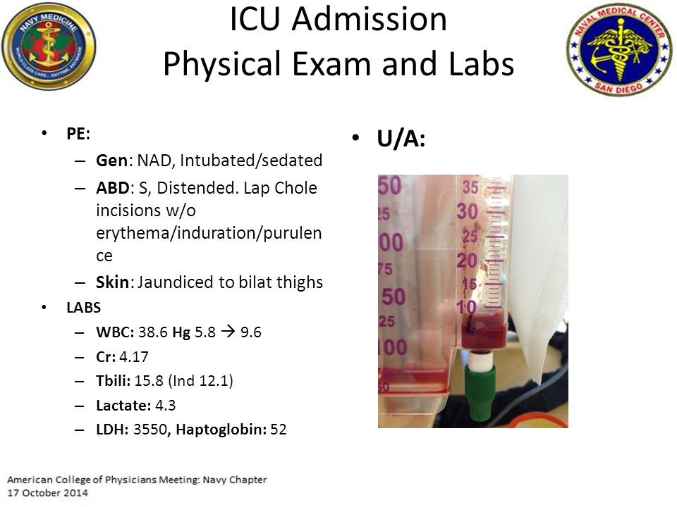 ICU Admission Physical Exam and Labs PE: – Gen: NAD, Intubated/sedated – ABD: S, Distended.