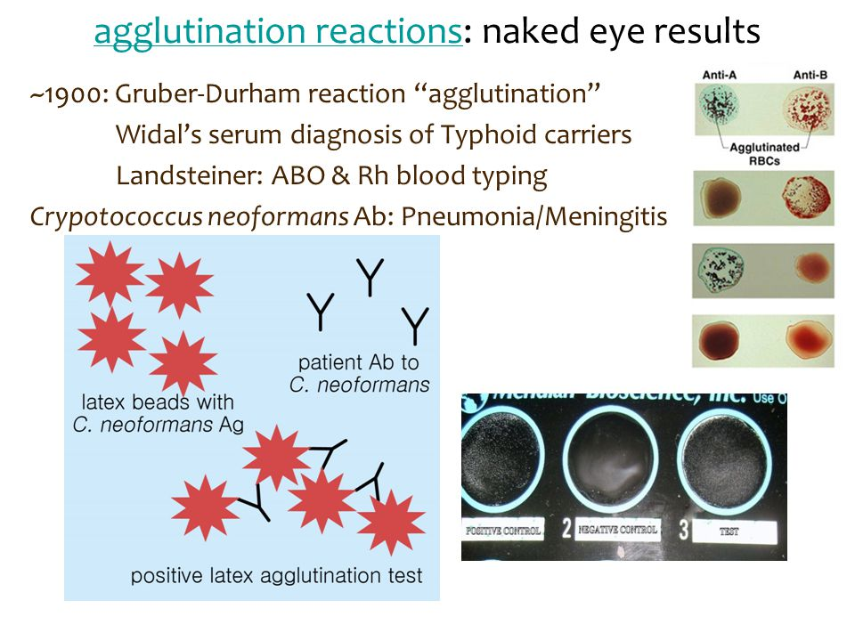 """agglutination reactionsagglutination reactions: naked eye results ~1900: Gruber-Durham reaction """"agglutination"""" Widal's serum diagnosis of Typhoid car"""