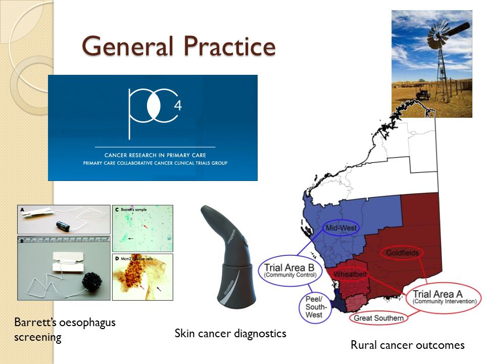 General Practice Barrett's oesophagus screening Skin cancer diagnostics Rural cancer outcomes