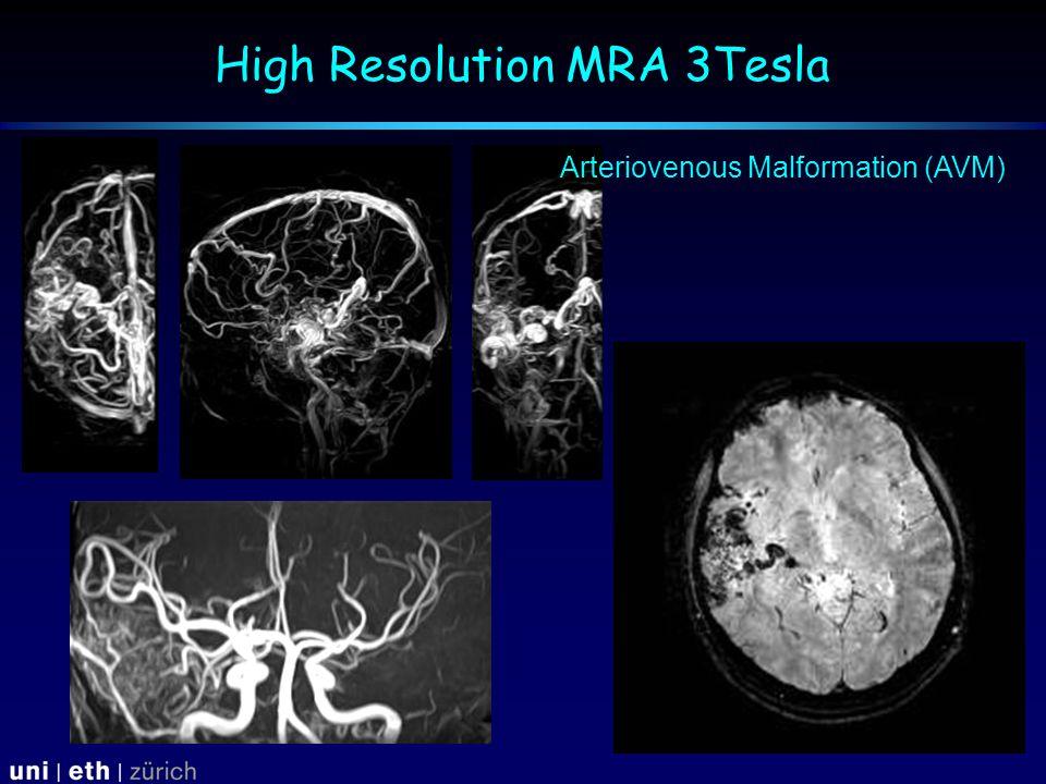 High Resolution MRA 3Tesla Arteriovenous Malformation (AVM)