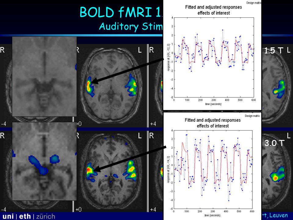 Courtesy: S. Sunaert, Leuven BOLD fMRI 1.5 vs 3T: Auditory Stimulation 1.5 T 3.0 T