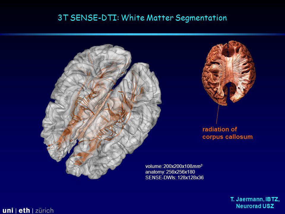 3T SENSE-DTI: White Matter Segmentation radiation of corpus callosum volume: 200x200x108mm 3 anatomy: 256x256x180 SENSE-DWIs: 128x128x36 T.