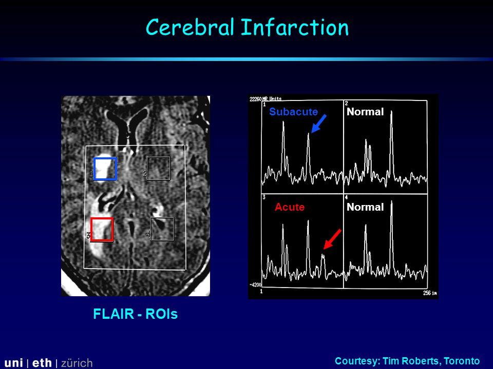Subacute Acute Normal Courtesy: Tim Roberts, Toronto FLAIR - ROIs Cerebral Infarction