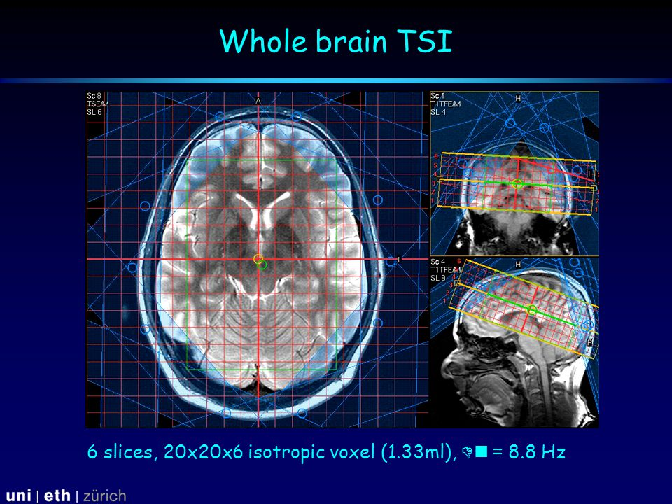 Whole brain TSI 6 slices, 20x20x6 isotropic voxel (1.33ml),  = 8.8 Hz