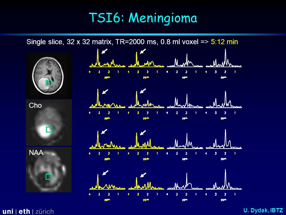 TSI6: Meningioma NAA Cho Single slice, 32 x 32 matrix, TR=2000 ms, 0.8 ml voxel => 5:12 min U.