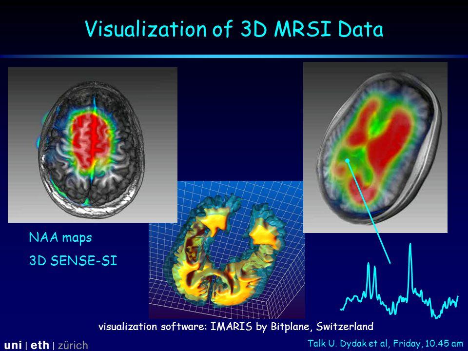Visualization of 3D MRSI Data visualization software: IMARIS by Bitplane, Switzerland NAA maps 3D SENSE-SI Talk U.