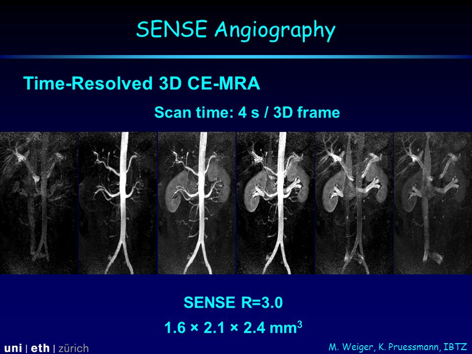 Scan time: 4 s / 3D frame SENSE R=3.0 1.6 × 2.1 × 2.4 mm 3 Time-Resolved 3D CE-MRA SENSE Angiography M.