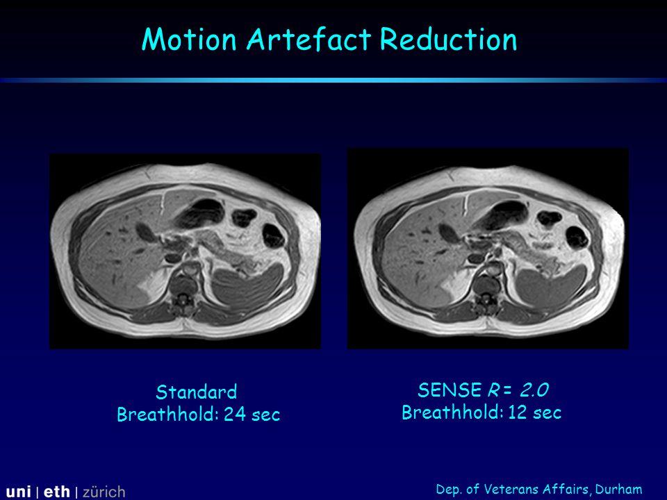 Motion Artefact Reduction Standard Breathhold: 24 sec SENSE R = 2.0 Breathhold: 12 sec Dep.