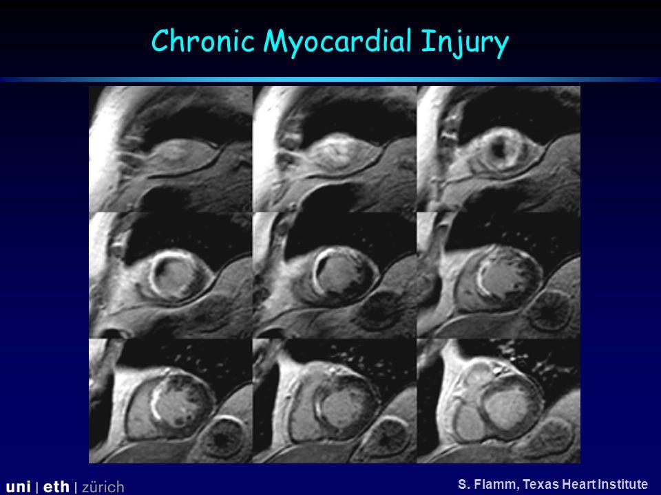 Chronic Myocardial Injury S. Flamm, Texas Heart Institute