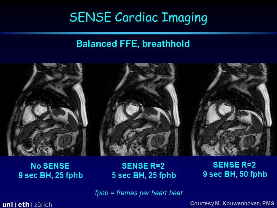 No SENSE 9 sec BH, 25 fphb SENSE R=2 5 sec BH, 25 fphb SENSE R=2 9 sec BH, 50 fphb Courtesy M.