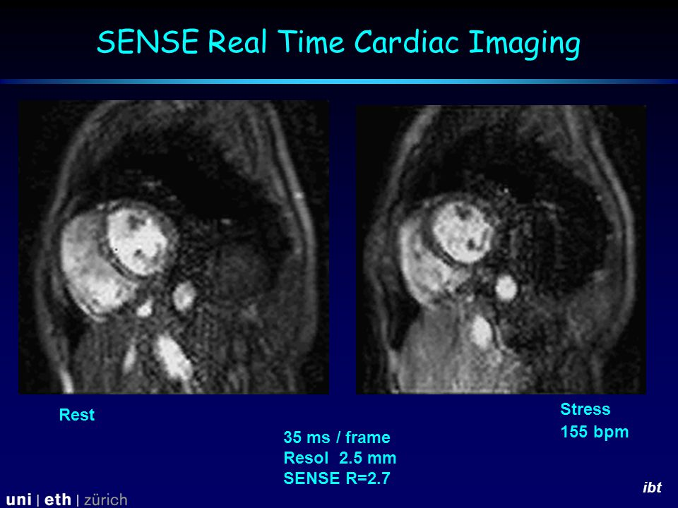 ibt 35 ms / frame Resol 2.5 mm SENSE R=2.7 Rest Stress 155 bpm SENSE Real Time Cardiac Imaging