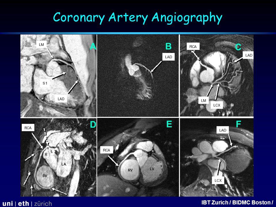 IBT Zurich / BIDMC Boston / A FE D C B Coronary Artery Angiography