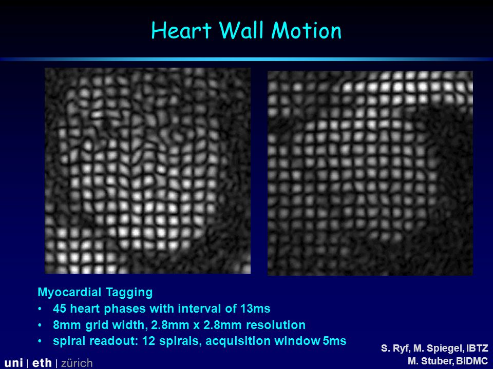 Myocardial Tagging 45 heart phases with interval of 13ms 8mm grid width, 2.8mm x 2.8mm resolution spiral readout: 12 spirals, acquisition window 5ms S.