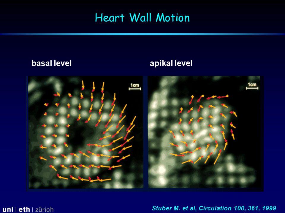 basal levelapikal level Stuber M. et al, Circulation 100, 361, 1999 Heart Wall Motion