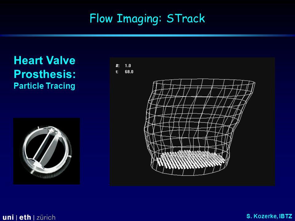 Heart Valve Prosthesis: Particle Tracing Flow Imaging: STrack S. Kozerke, IBTZ