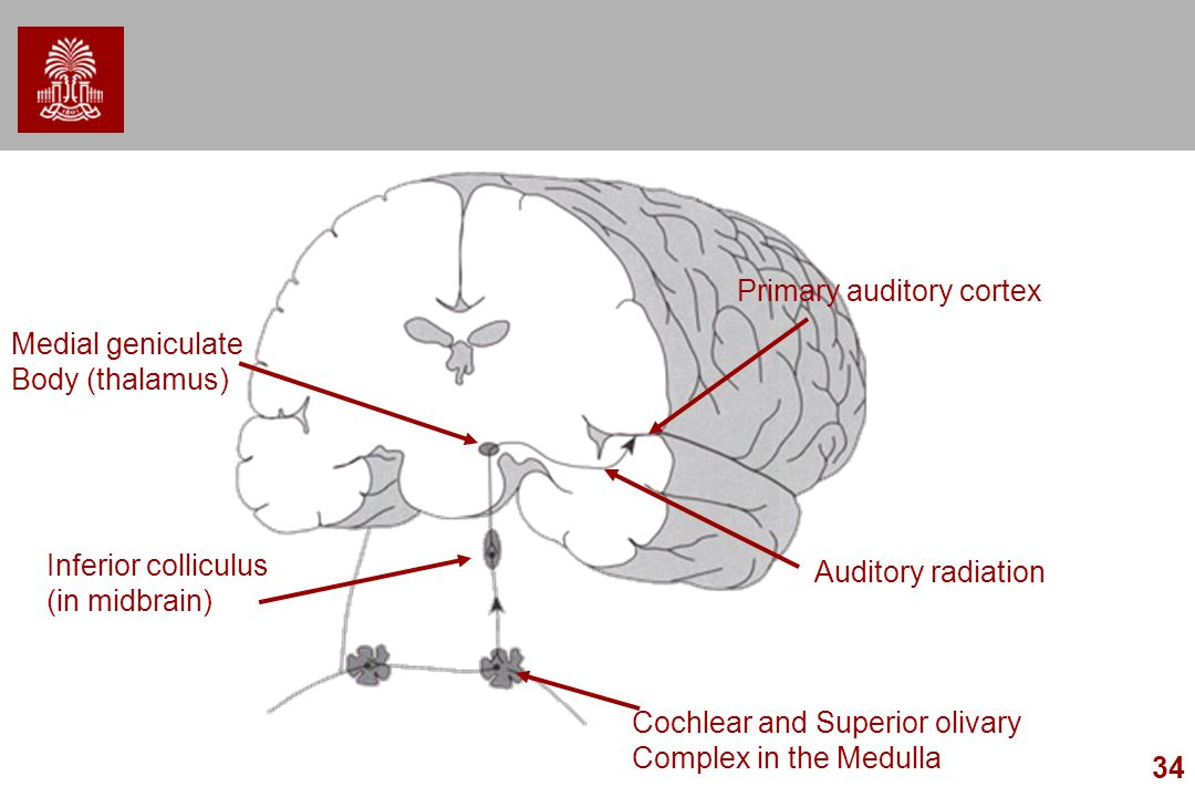 34 Cochlear and Superior olivary Complex in the Medulla Inferior colliculus (in midbrain) Medial geniculate Body (thalamus) Primary auditory cortex Au