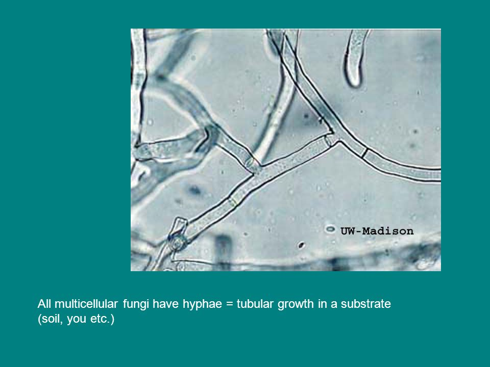 All multicellular fungi have hyphae = tubular growth in a substrate (soil, you etc.)