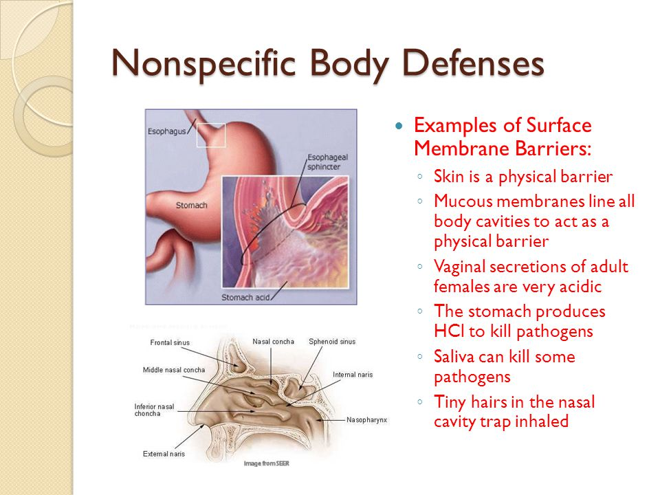Nonspecific Body Defenses Examples of Surface Membrane Barriers: ◦ Skin is a physical barrier ◦ Mucous membranes line all body cavities to act as a ph