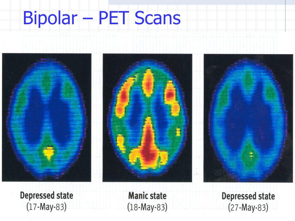 Bipolar – PET Scans