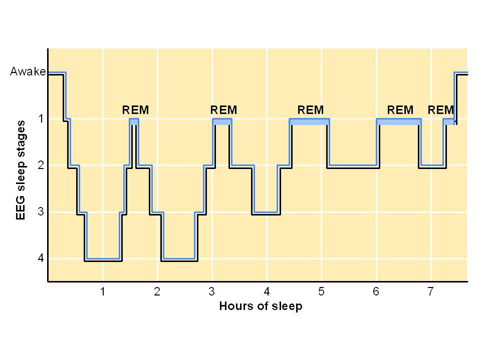 Types of sleep apnea Central Sleep Apnea - caused by a delay in the signal form the brain to breath.