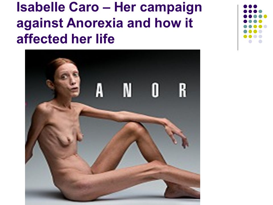 Isabelle Caro – Her campaign against Anorexia and how it affected her life