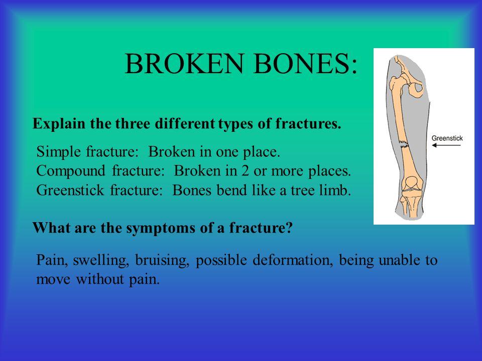 BROKEN BONES: Explain the three different types of fractures. Simple fracture: Broken in one place. Compound fracture: Broken in 2 or more places. Gre