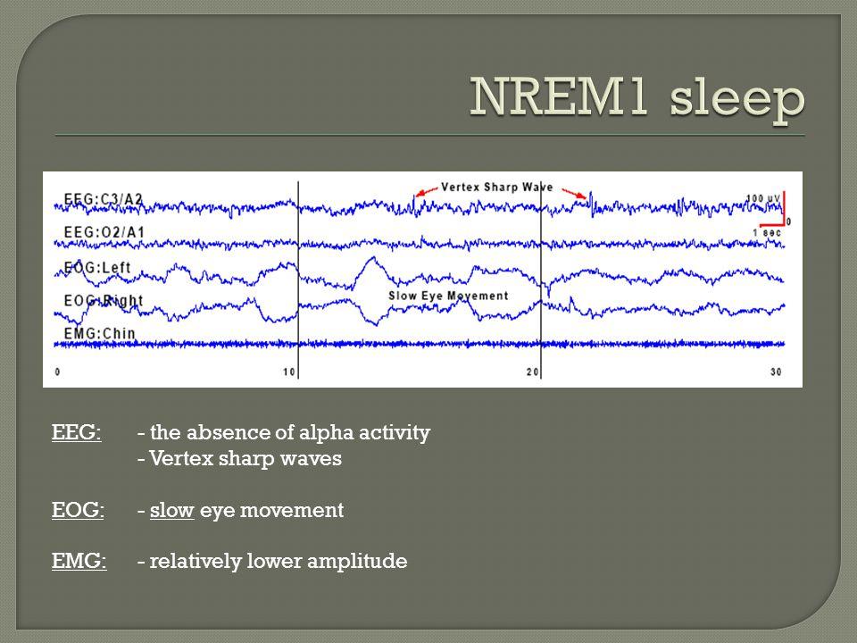 EEG:- the absence of alpha activity - Vertex sharp waves EOG: - slow eye movement EMG:- relatively lower amplitude