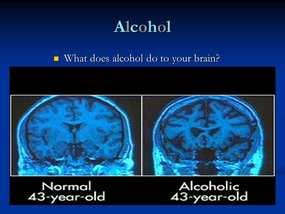 AlcoholAlcoholAlcoholAlcohol What does alcohol do to your brain? What does alcohol do to your brain?