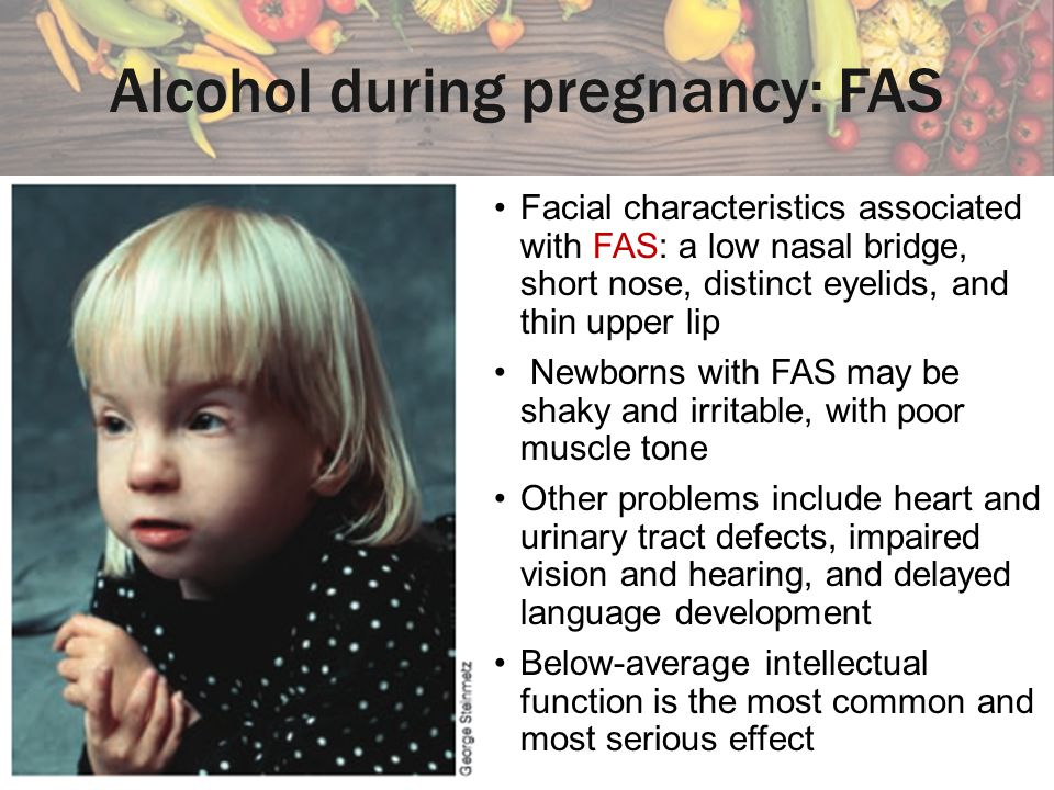 Alcohol during pregnancy: FAS Facial characteristics associated with FAS: a low nasal bridge, short nose, distinct eyelids, and thin upper lip Newborn