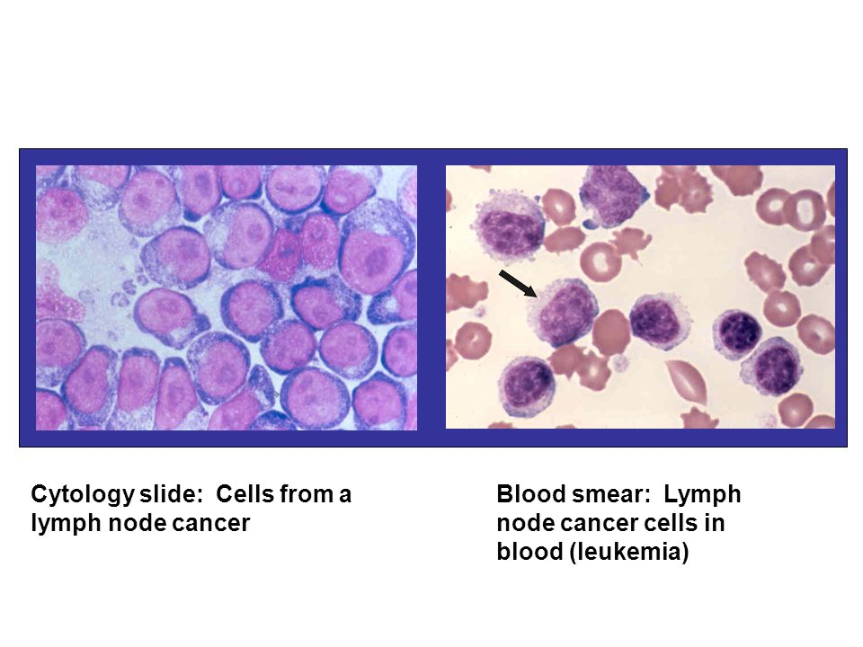 Cytology slide: Cells from a lymph node cancer Blood smear: Lymph node cancer cells in blood (leukemia)