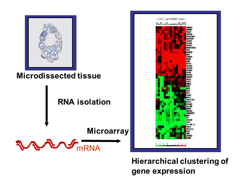 Microdissected tissue Hierarchical clustering of gene expression mRNA RNA isolation Microarray