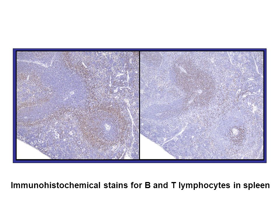 Immunohistochemical stains for B and T lymphocytes in spleen