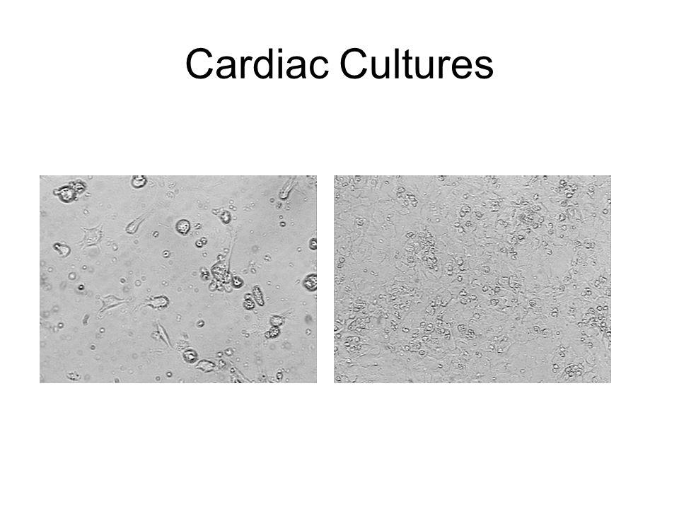 Cardiac Cultures