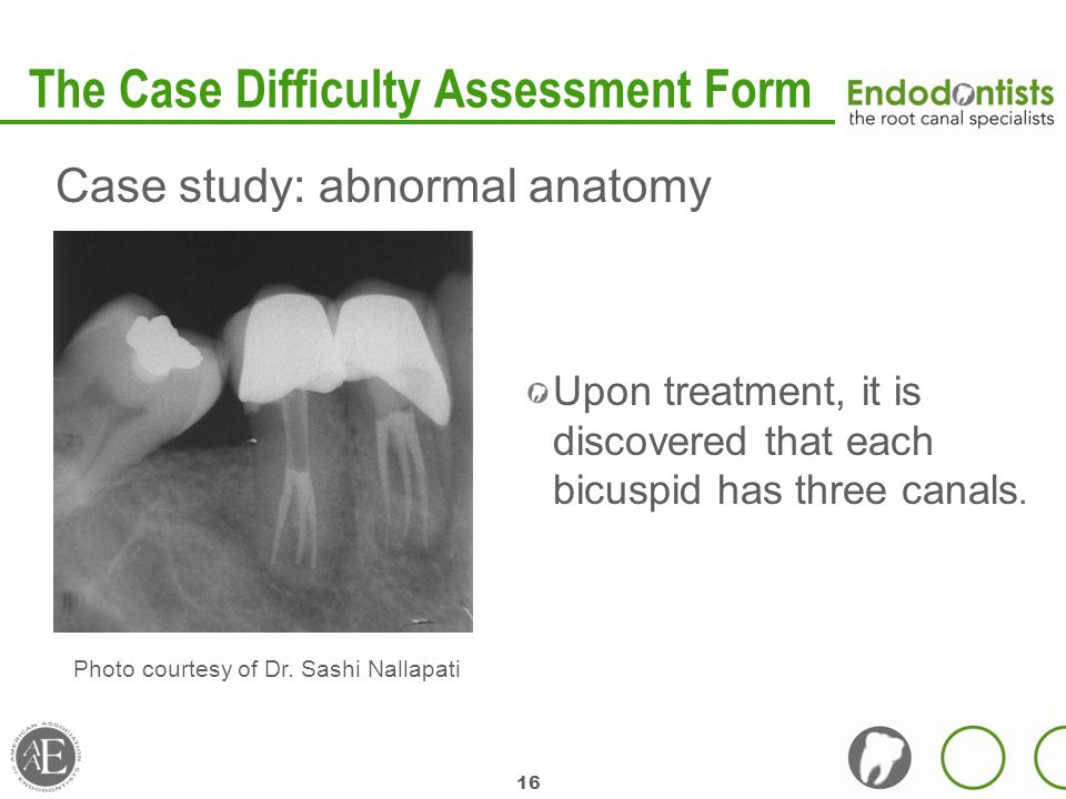 16 The Case Difficulty Assessment Form Case study: abnormal anatomy Upon treatment, it is discovered that each bicuspid has three canals.