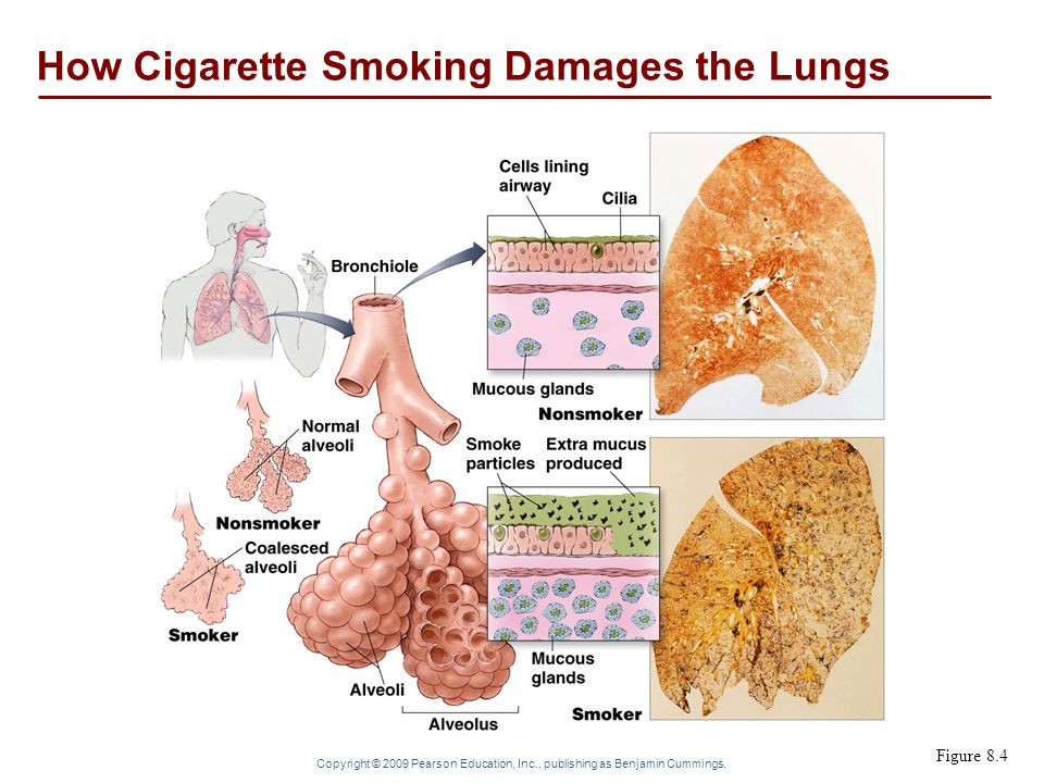 Copyright © 2009 Pearson Education, Inc., publishing as Benjamin Cummings. Figure 8.4 How Cigarette Smoking Damages the Lungs