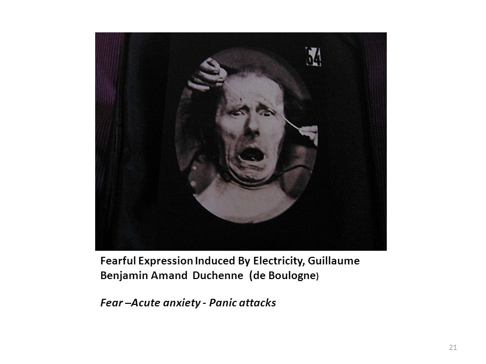 Fearful Expression Induced By Electricity, Guillaume Benjamin Amand Duchenne (de Boulogne ) Fear –Acute anxiety - Panic attacks 21