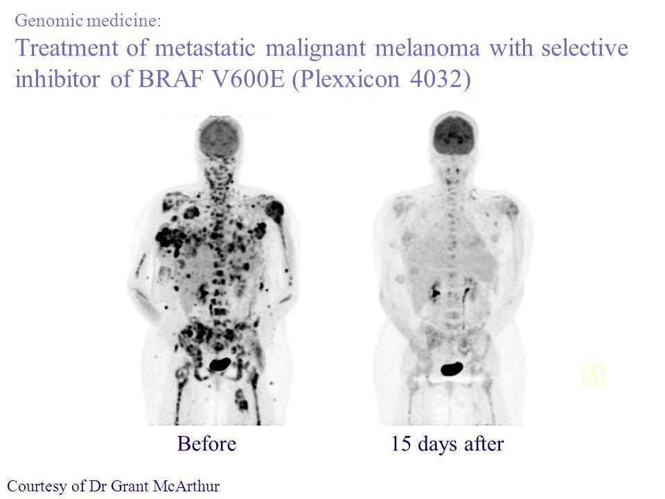 Genomic medicine: Treatment of metastatic malignant melanoma with selective inhibitor of BRAF V600E (Plexxicon 4032) Before15 days after Courtesy of Dr Grant McArthur