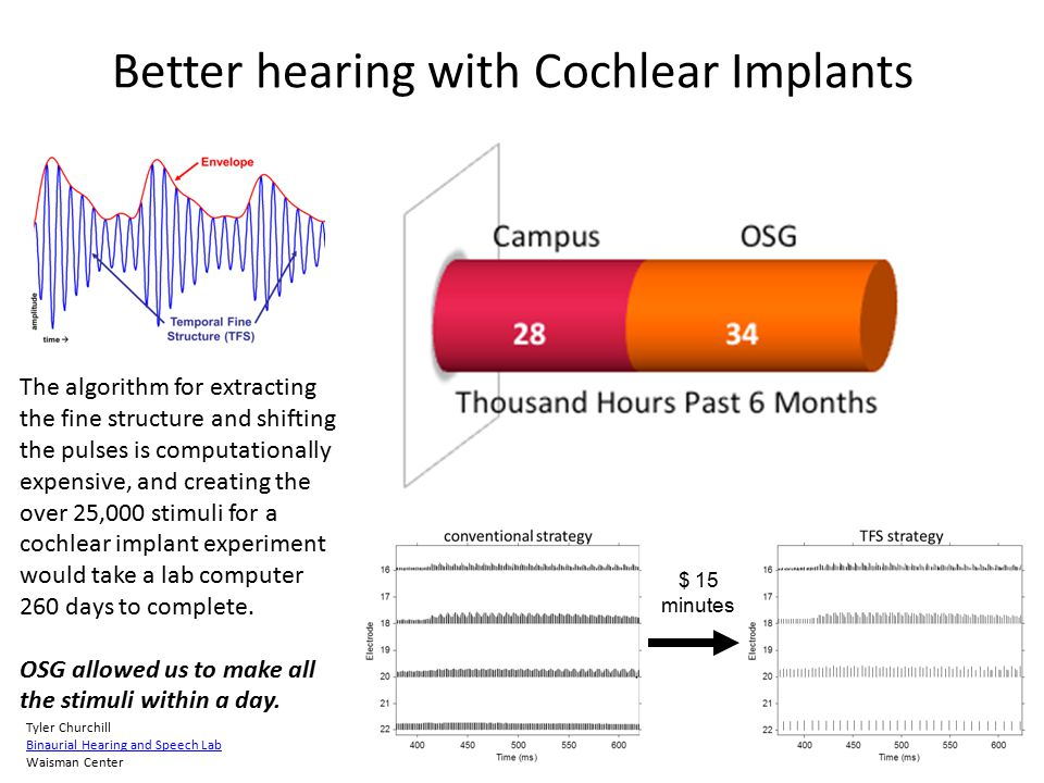Better hearing with Cochlear Implants Normal hearing listeners need sound's temporal fine structure information to understand speech in noise, localize sounds, and recognize talkers and melodies.