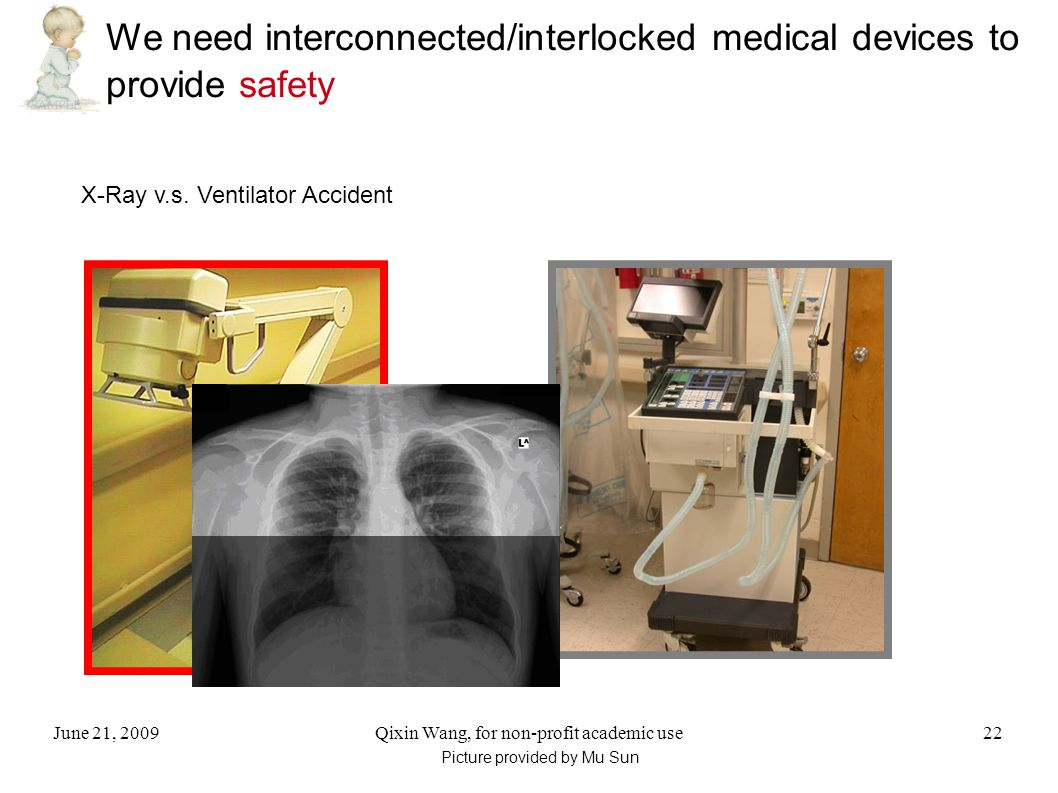 June 21, 2009Qixin Wang, for non-profit academic use22 We need interconnected/interlocked medical devices to provide safety X-Ray v.s.