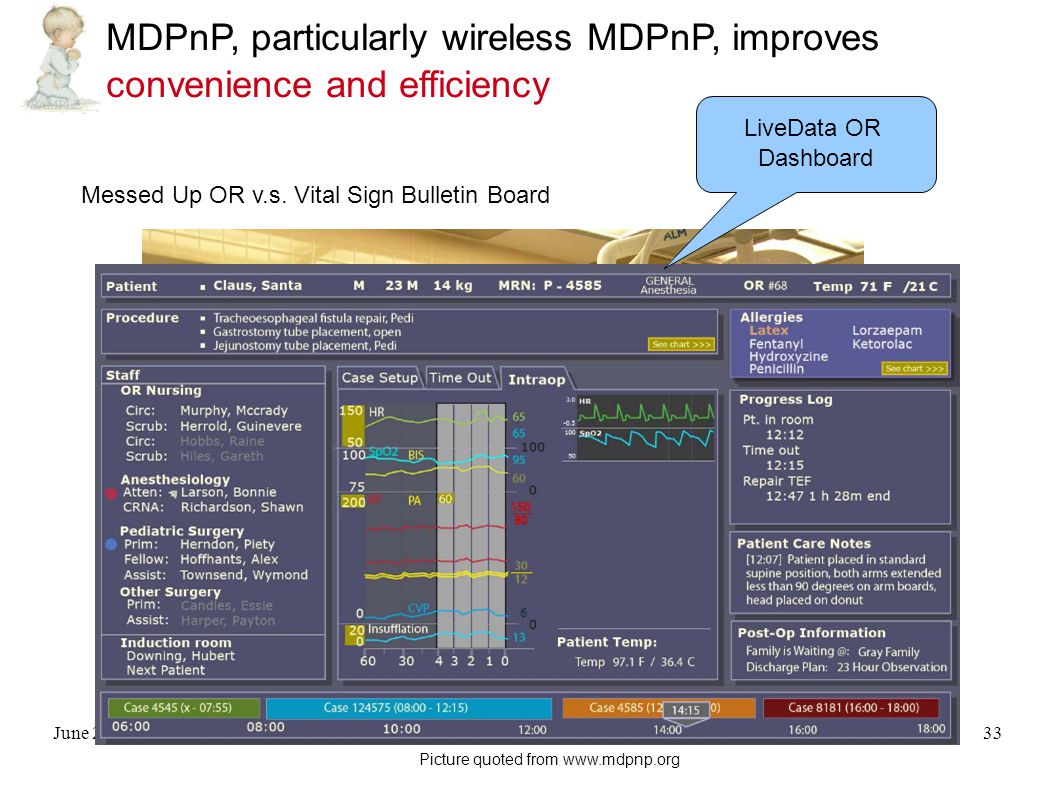 June 21, 2009Qixin Wang, for non-profit academic use33 MDPnP, particularly wireless MDPnP, improves convenience and efficiency Messed Up OR v.s.