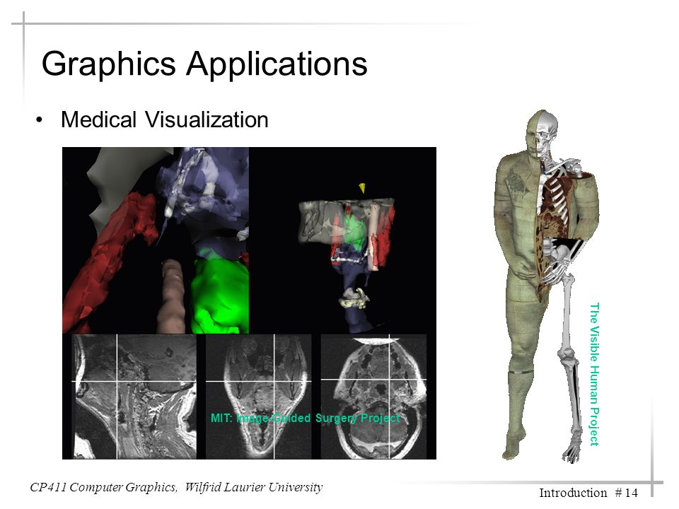 CP411 Computer Graphics, Wilfrid Laurier University Introduction # 14 Graphics Applications Medical Visualization MIT: Image-Guided Surgery Project The Visible Human Project