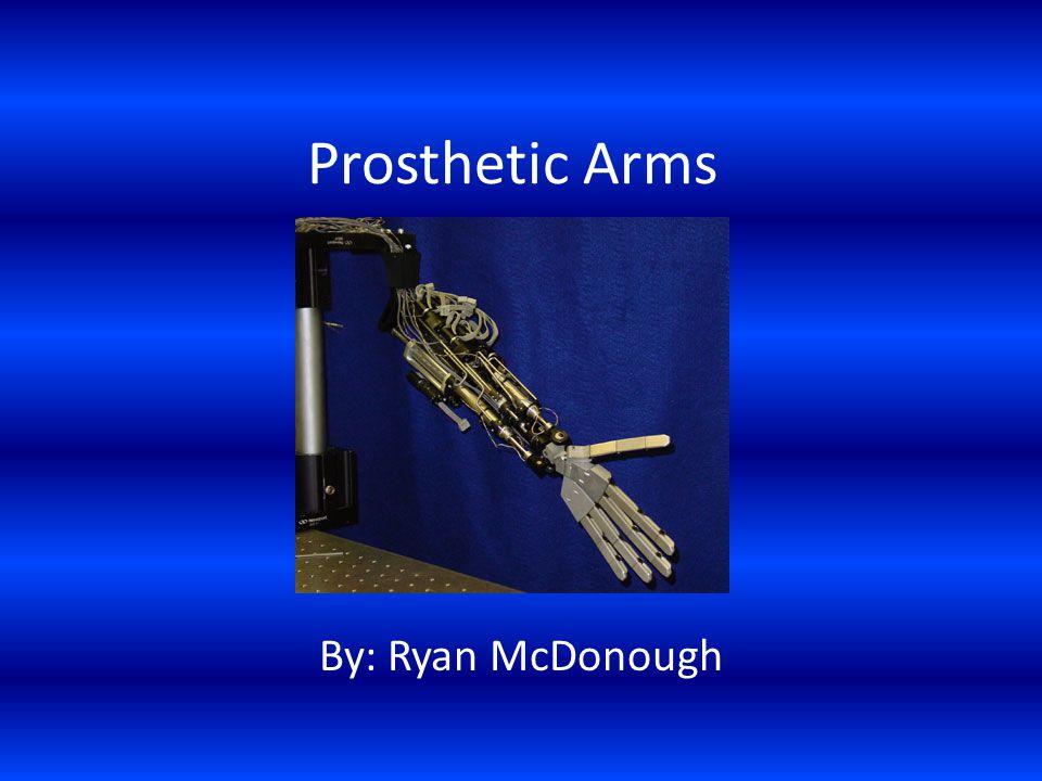 Prosthetic Arms By: Ryan McDonough